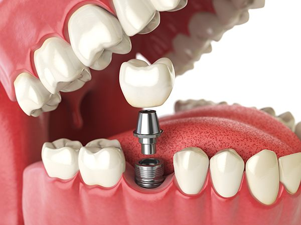 biassono dentisti dentalheart implantologia